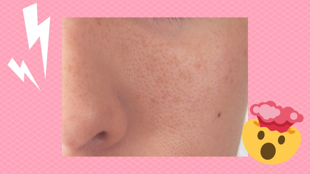 頬の毛穴の開き画像