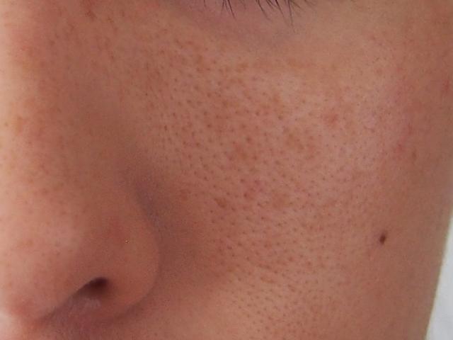 頬の毛穴画像