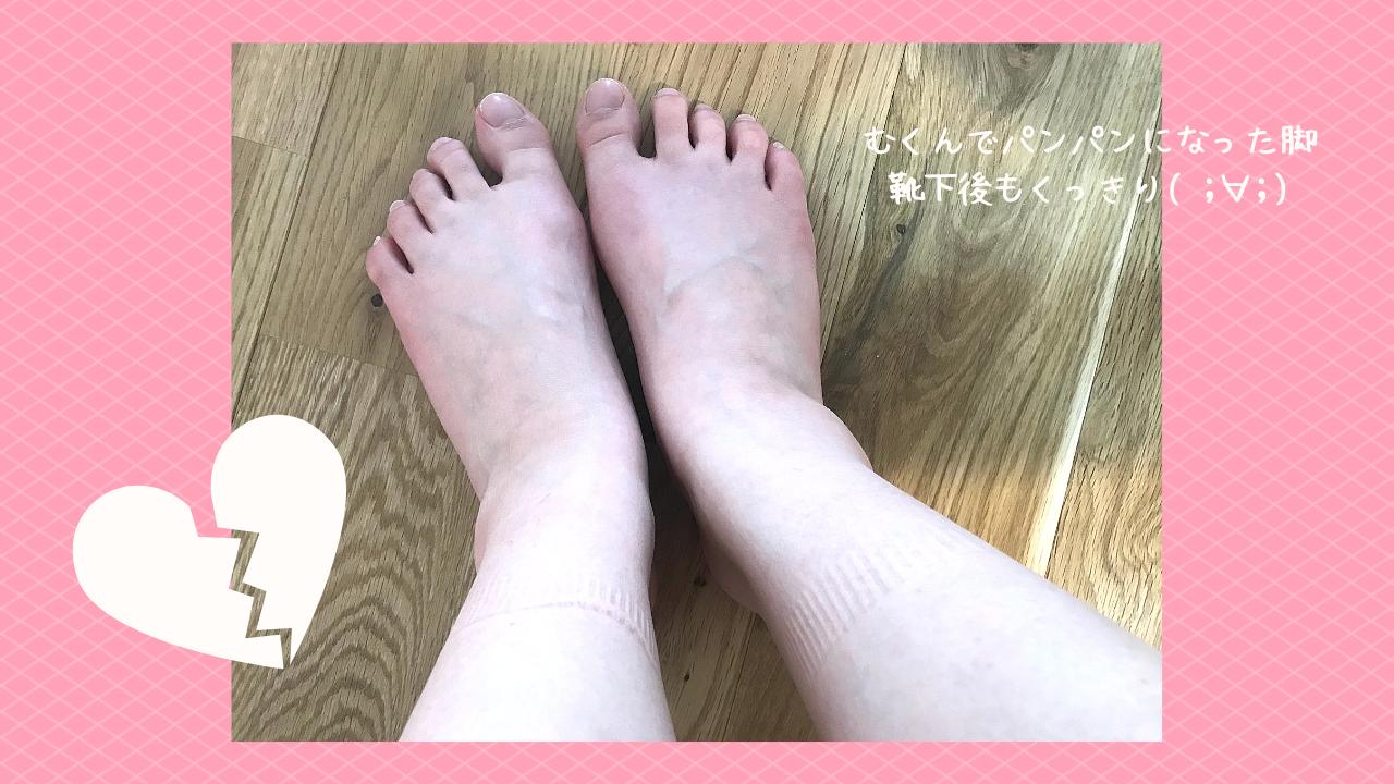 むくんだ脚